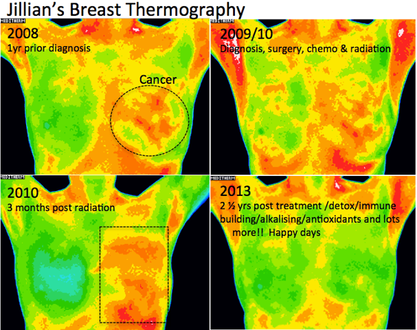 Jillian's Breast Thermography